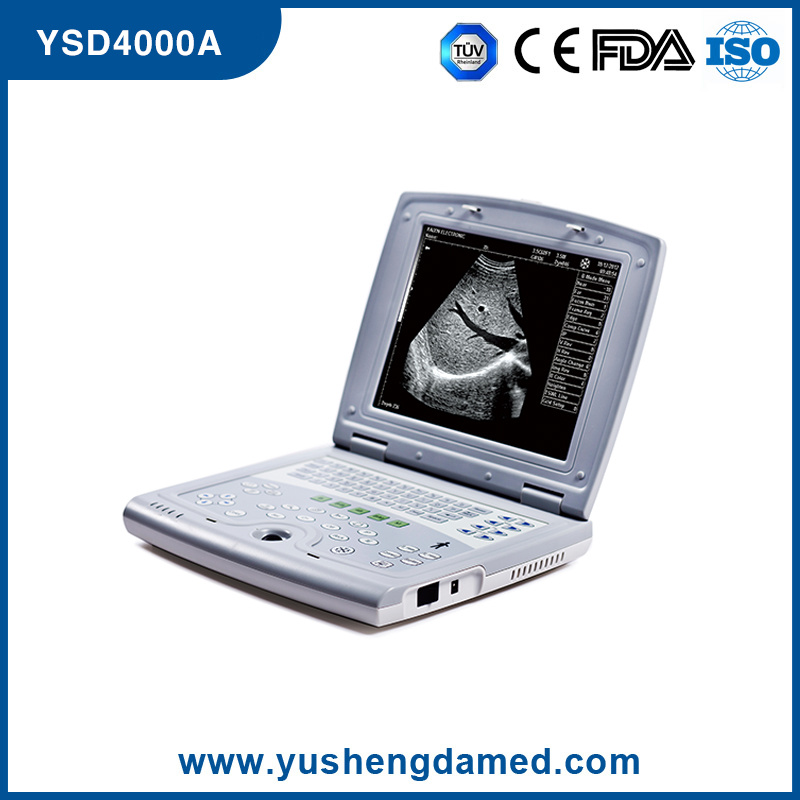 Ysd4000A Full Digital Laptop Ultrasound CE ISO SGS FDA Approved