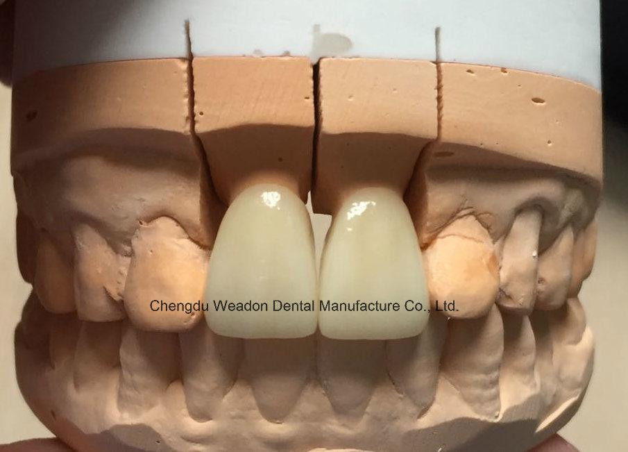 Zirconic Crown Dental