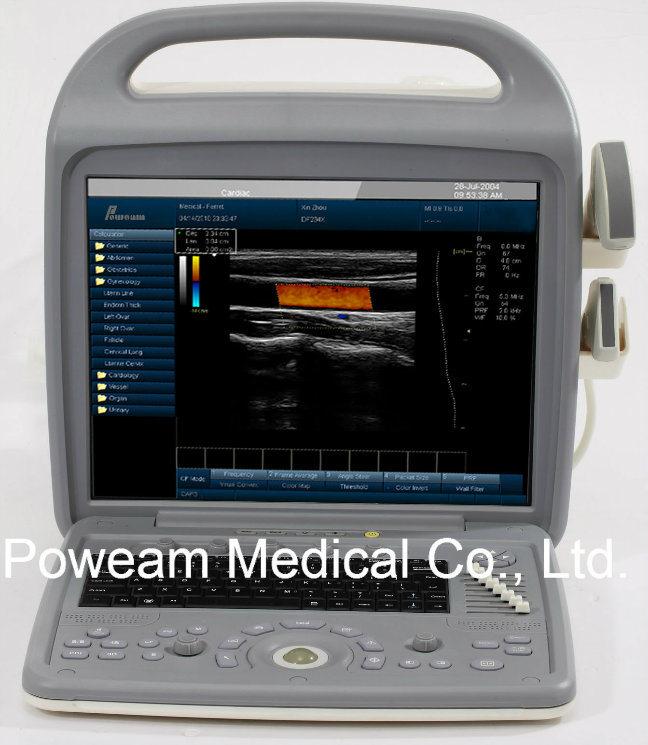 3D Full Digital Color Doppler Ultrasound (D20)