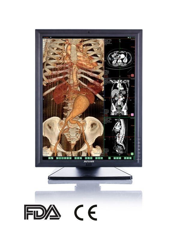 3MP 2048X1536 LED Colour Diagnostic Monitor for X Ray Medical Equipment CE FDA