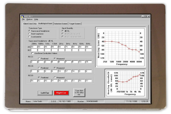"""5.7"""" TFT Screen for Industrial Use"""