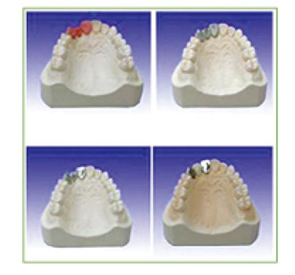 Dental Teaching Model of Producing Steps