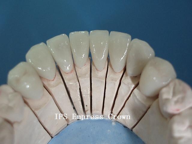 E-Max Crowns Veneers/Iaminates Made in China Dental Laboratory