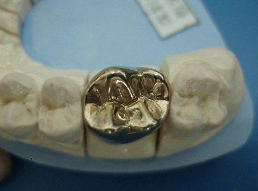 Denture Semi-Precious/Precious Porcelain Crown