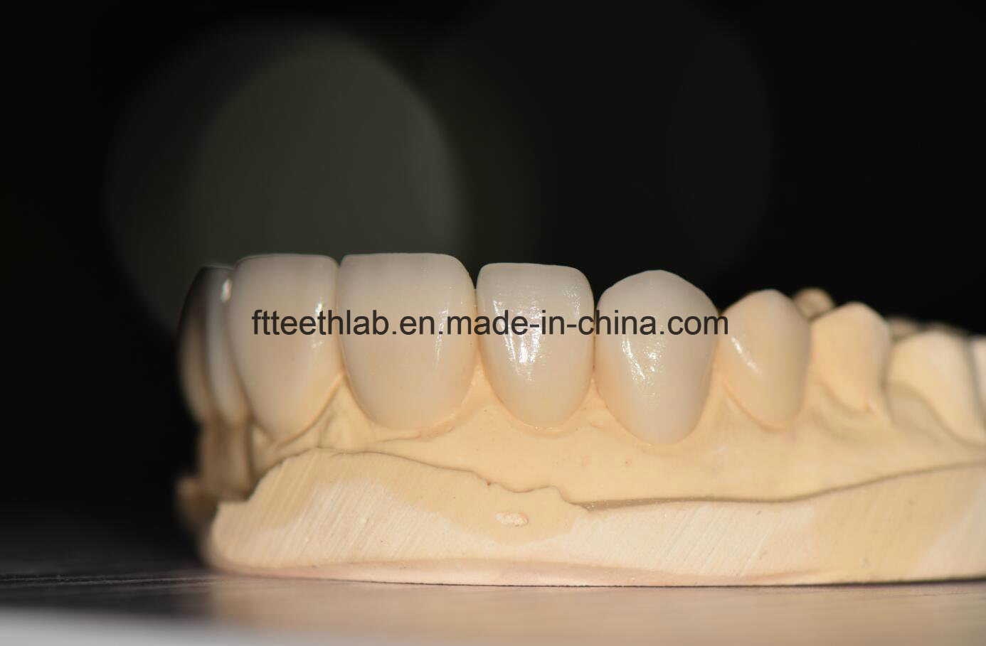 No Preparation Ultrathin Veneers Made in China Dental Lab