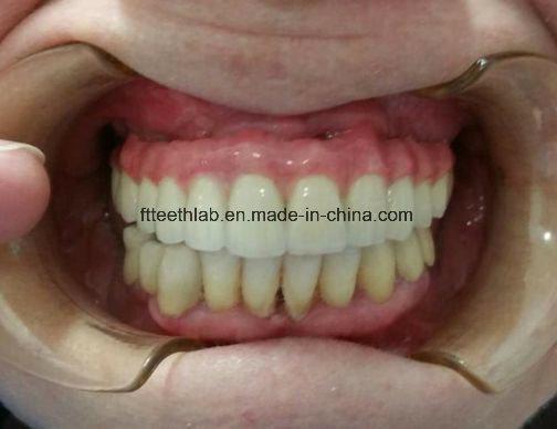 Full Arch Cemented Metal Ceramic Implant Bridge