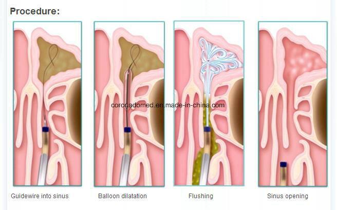 Sinuplasty Balloon Catheter System for Ent Feild