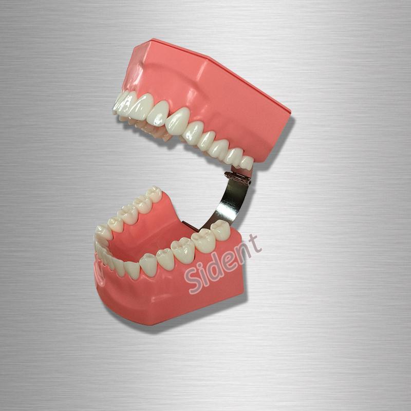 Dental Orthodontics Study Model with Ceramic Brackets