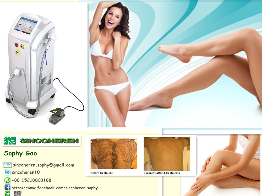 808nm Diode Laser for Permanent Hair Removal Laser Machine
