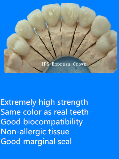 Dental IPS E. Max Crown Made in China Dental Lab