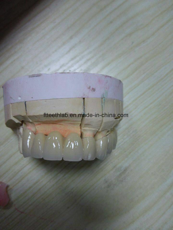 Fix Dental Prosthesis Bridge From China Dental Lab