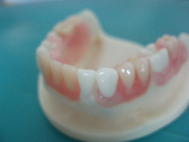 Dental Removable Acrylic Partial Denture