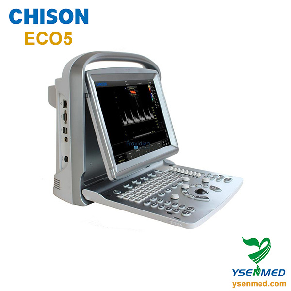 Hospital Medical Chison Eco5 Good Price Color Doppler Portable Ultrasound Equipment