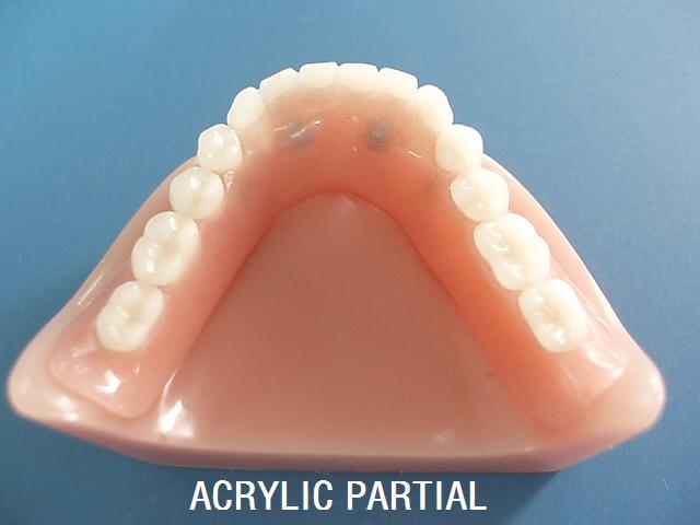 Good Biocomputilily Natural and Beautiful Acrylic Resin Denture