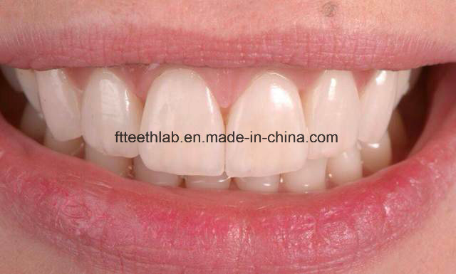 Natural and Aeshetic Dental Emax Facings