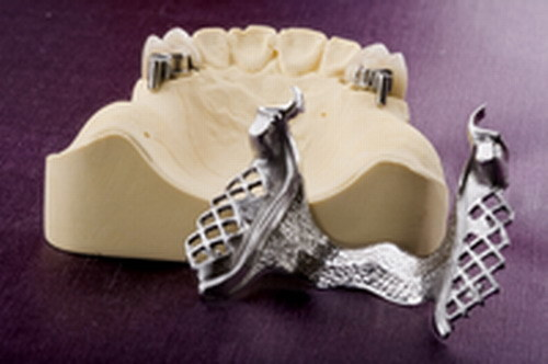 Removable Frameworks with Precious Attachments Made in China Dental Lab