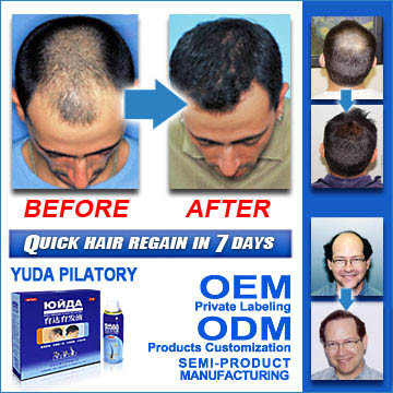 System to Fight Hair Loss! - China Stop Hair Loss, Fast Stop Hair Loss