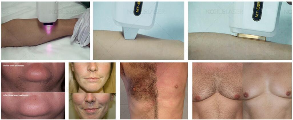 Medical CE 808nm Diode Laser Hair Removal