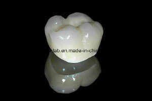 Full Contour Zirconia Crown From China Dental Lab