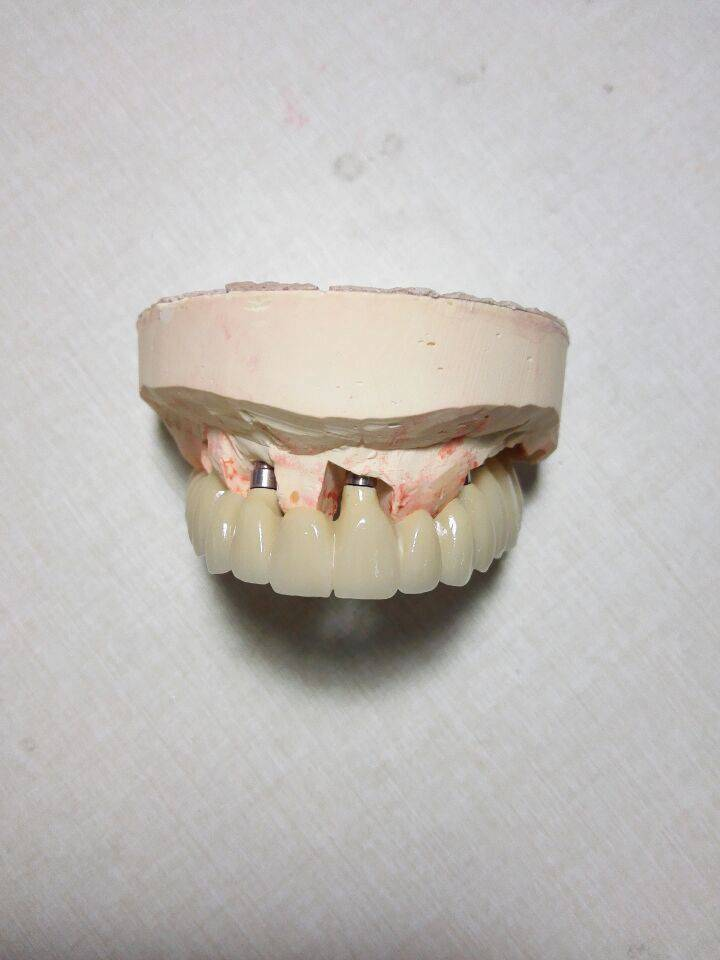 Dental Implant Metal Ceramic Bridge From China Dental Lab