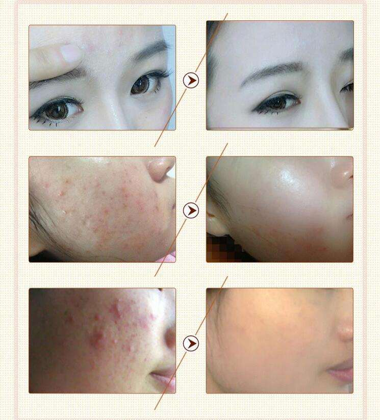Natural Bio Anti-Acne Skin Care Skin Cream Products for Facial Skin Problems Treatment