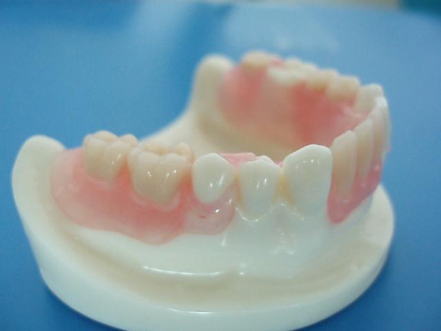 Dental Removable Acrylic Partial Denture