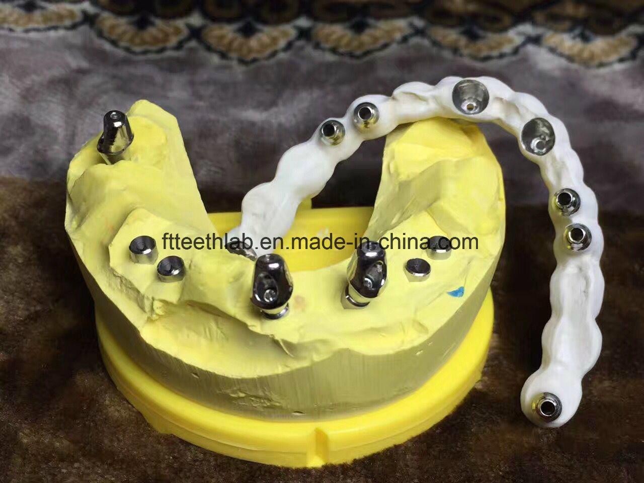 Full Arch Zirconium Implant Bridge From China Dental Lab