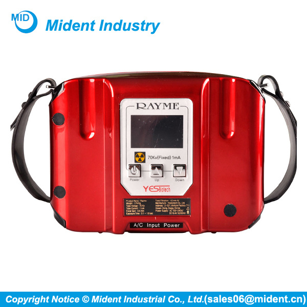 Wireless Korean Yesbiotech Portable Dental X Ray Unit
