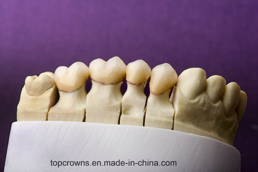 Denture Porcelain Bonded to Metal Crowns Made in China Dental Lab