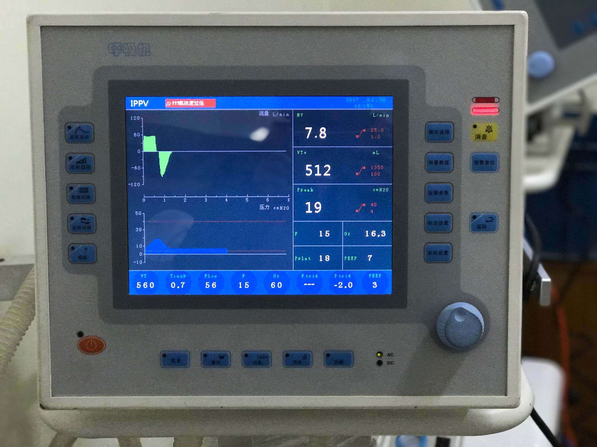 High Quality Medical/Hospital Ventilator Lh8800 for Operation and Rehabilitation