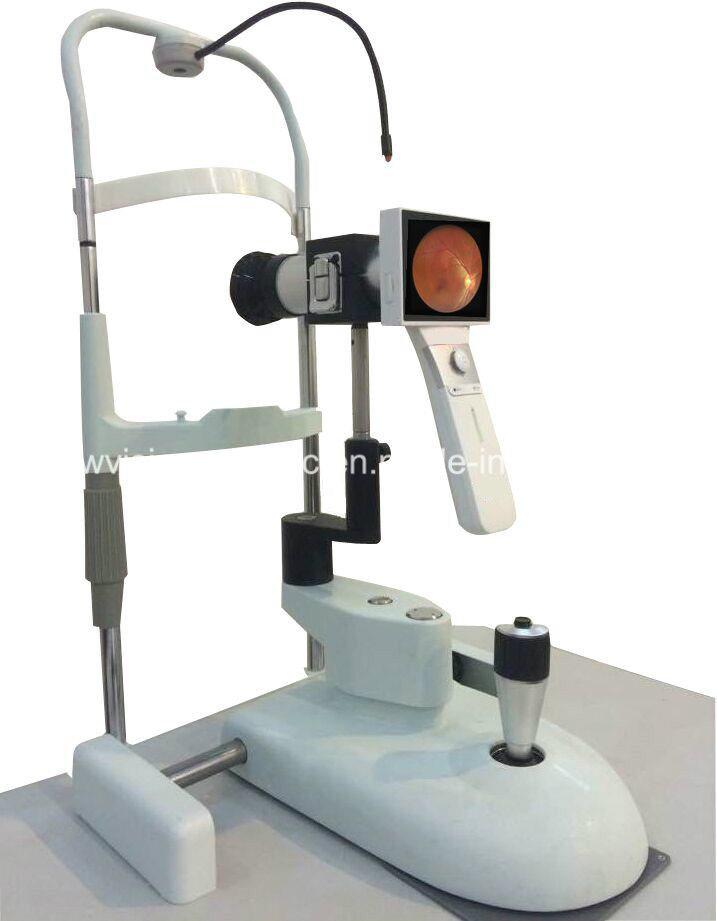 Digital Non-Mydriatic Hand Held Fundus Camera