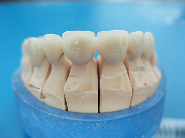 All-Ceramic IPS Empress Crown Use Ce Materials
