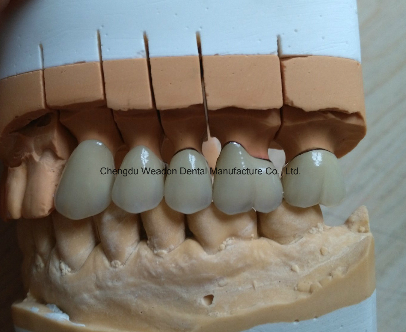 Pfm Bridge Denture for Clinic From Chinese Lab Center