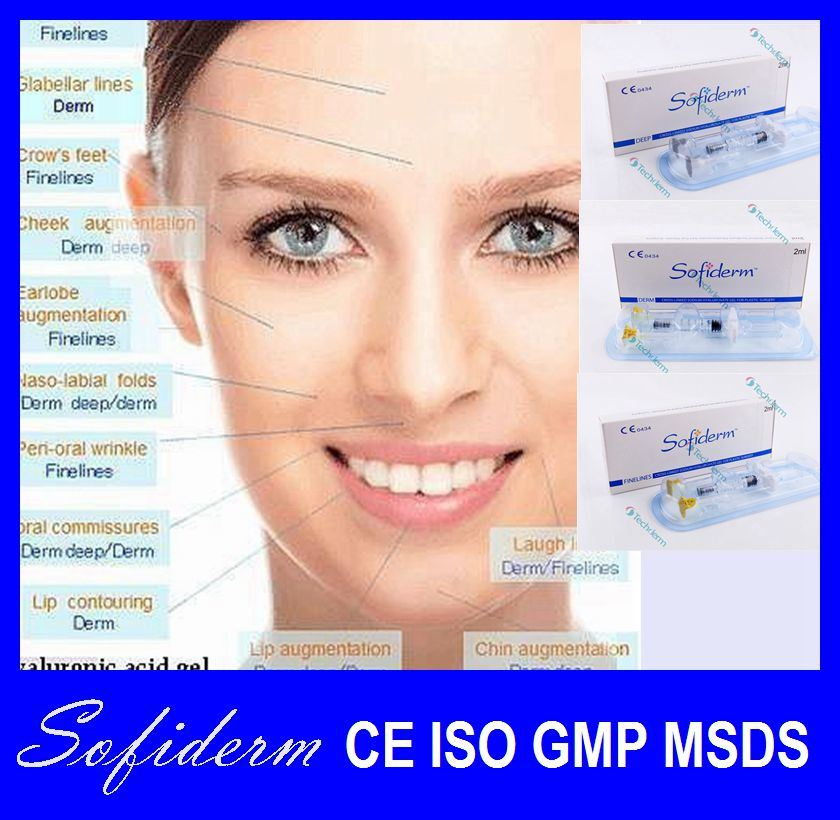 Sofiderm Good Effect Injectable Hyaluronic Acid Dermal Filler