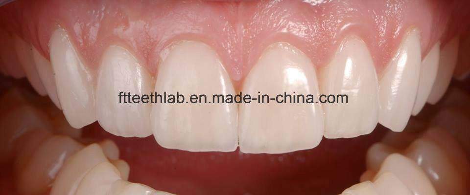 Natural and Aeshetic Dental Emax Facings