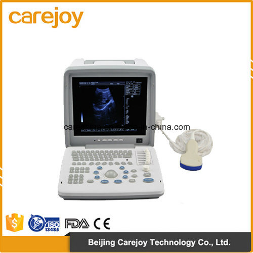 Factory Price 12-Inch LCD Portable Ultrasound Scanner (RUS-9000B) -Fanny