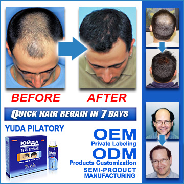 Days Stop Hair Loss 100% Natural Herbal Pilatory Product - China