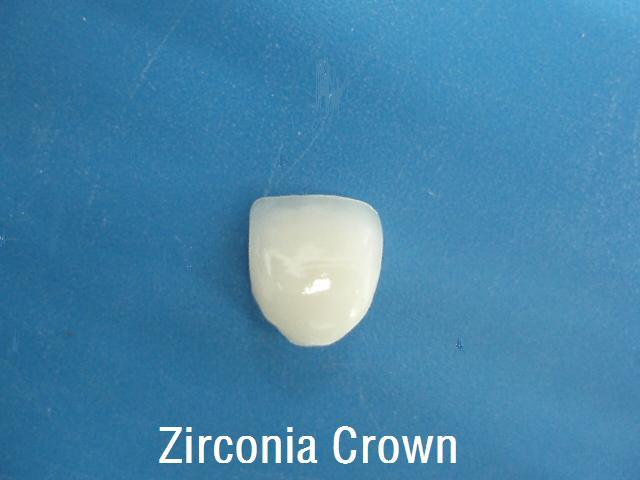 E-Max Crowns and Bridges Made in China Dental Laboratory