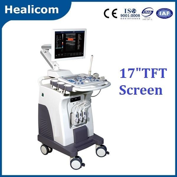 Trolley 2D 3D Color Doppler Scanner Ultrasound (HU-C80 Plus)