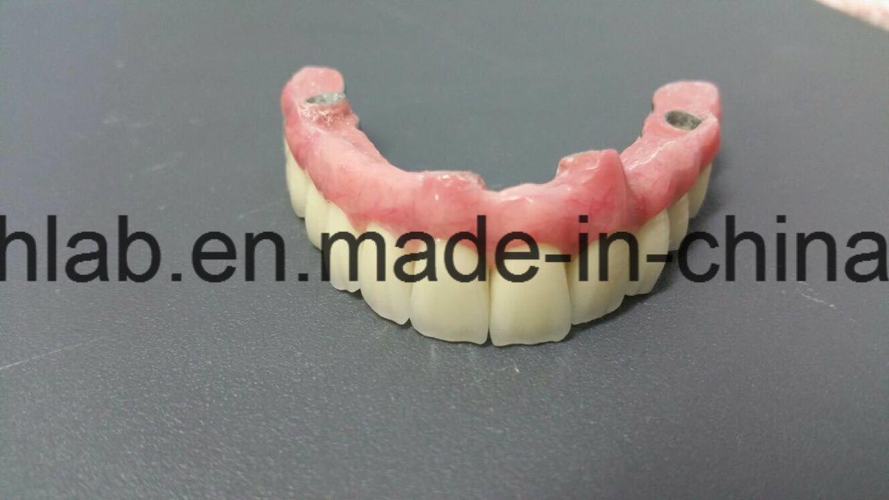 Screwed Implant Bridge with Custom Abutments