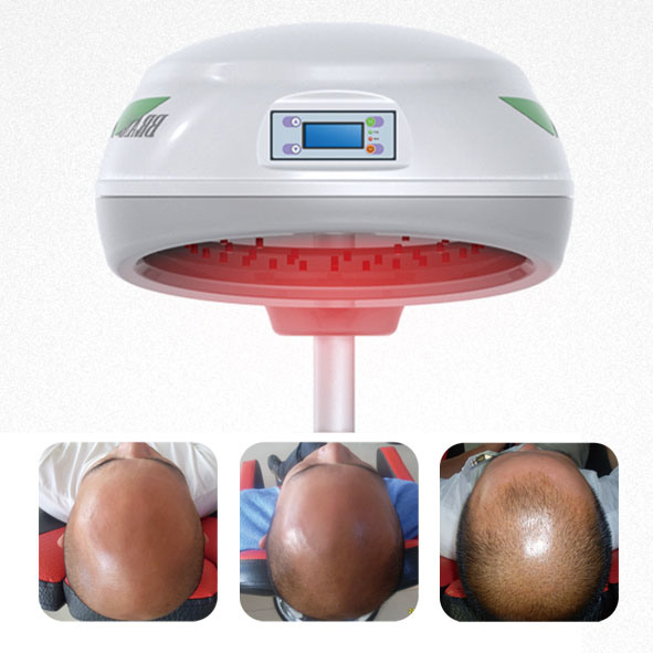 Hair Growth Laser Treatment for Hair Loss
