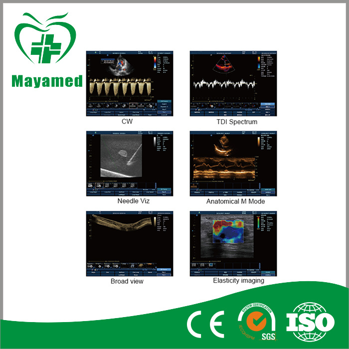 High Precision Medical Digital Color Doppler Cardiac Ultrasound Scanner Special Use for Cardiac Examination and Cardiac Surgery