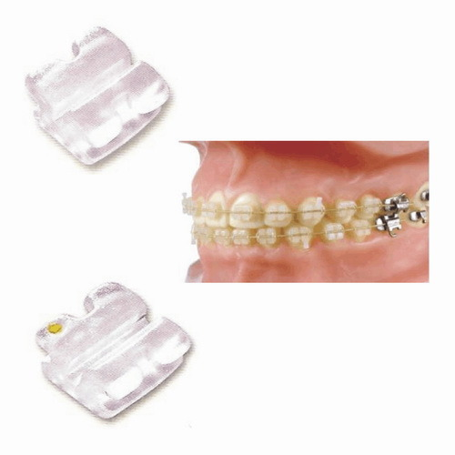 Dental High Quality Orthodontic Ceramic Edgewise Bracket 0.022