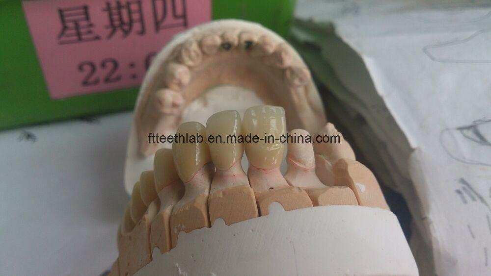 Dental Metal Ceramic Crown