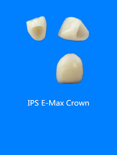 Dental All-Ceramic Empress Crowns Made in China Dental Lab