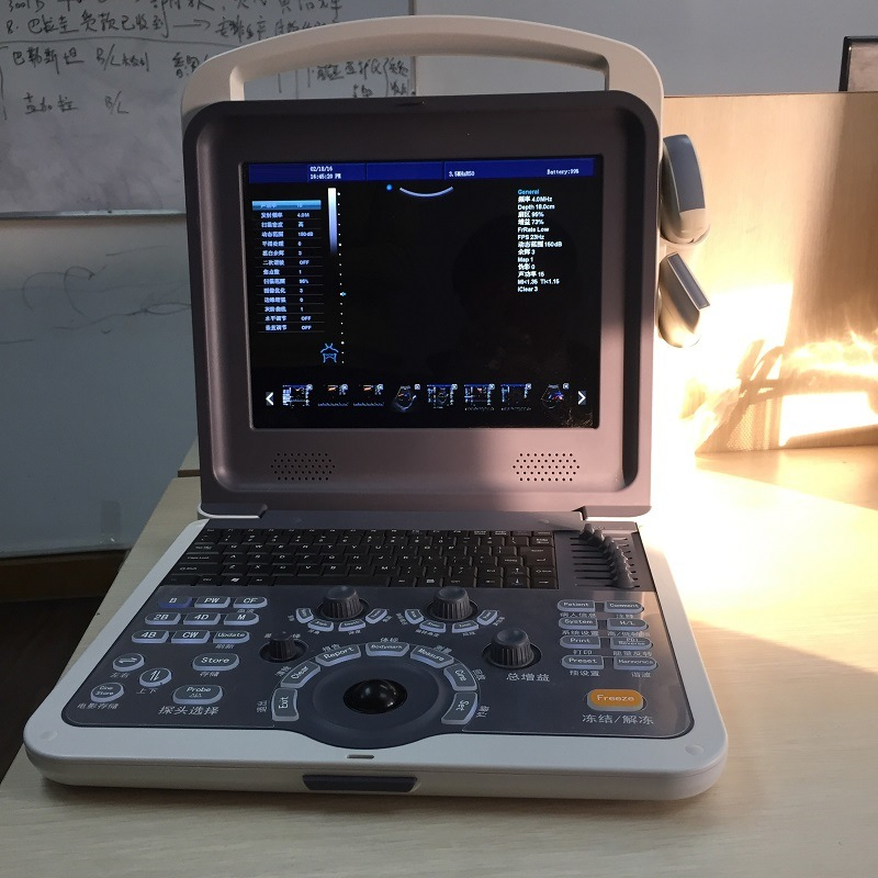 Hand-Carried Color Doppler System Ultrasound (HUC-300)