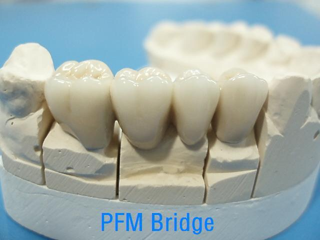 Dental Porcelain Fused to Metal Crowns Made in China Dental Lab