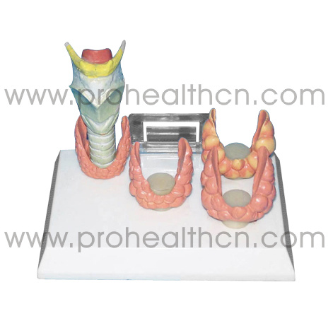 Natural Larynx Diseases Comparison Medical Education Anatomical Model