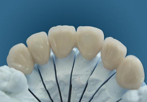 Dental All-Ceramic Empress Veneers Made in China Dental Laboratory