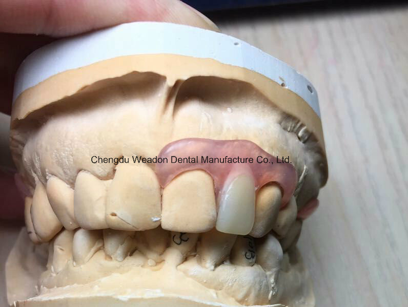 Valplast Denture for Dental Lab From Chinese Dental Lab